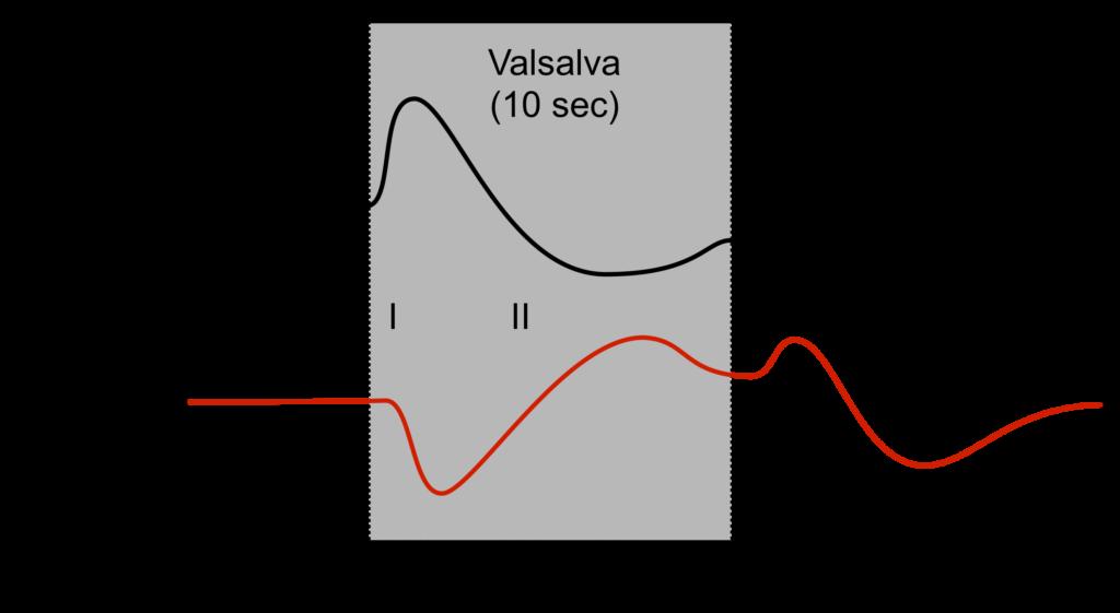 Valsalva Maneuver Graph
